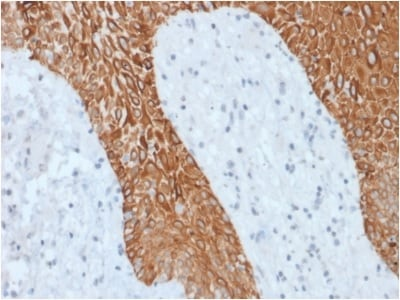 Immunohistochemistry (Formalin/PFA-fixed paraffin-embedded sections) - Anti-pan Cytokeratin antibody [KRT/1877R] - BSA and Azide free (ab236323)