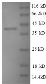 SDS-PAGE - Recombinant Mouse Thrombospondin 1 protein (His tag) (ab236329)