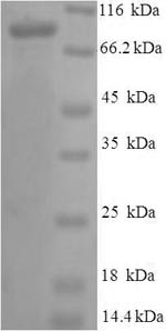 SDS-PAGE - Recombinant Human Protein S (Tagged) (ab236338)