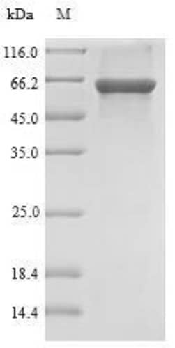 SDS-PAGE - Recombinant Rat SULT1B1 protein (Tagged) (ab236340)