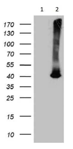 Western blot - Anti-ATP6V0D2 antibody [OTI2D6] (ab236375)