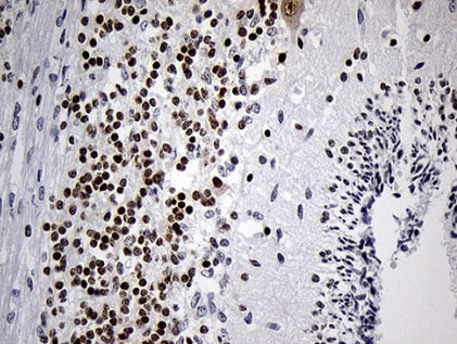 Immunohistochemistry (Formalin/PFA-fixed paraffin-embedded sections) - Anti-Dlx1 antibody [OTI1E6] (ab236381)