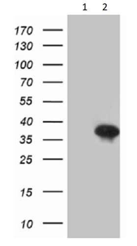 Western blot - Anti-Dlx1 antibody [OTI1E6] (ab236381)