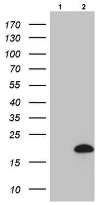 Western blot - Anti-HPCAL4 antibody [OTI3F11] (ab236390)