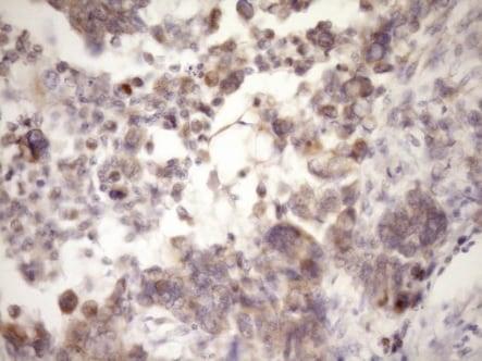 Immunohistochemistry (Formalin/PFA-fixed paraffin-embedded sections) - Anti-MCEE antibody [OTI1B5] (ab236397)