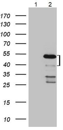 Western blot - Anti-MKX antibody [OTI6A12] (ab236400)