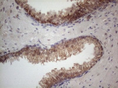 Immunohistochemistry (Formalin/PFA-fixed paraffin-embedded sections) - Anti-MTF1 antibody [OTI2F3] (ab236401)