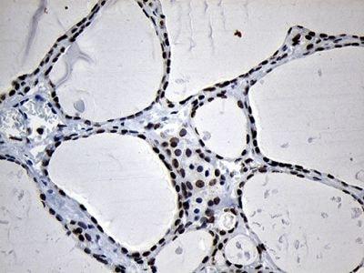 Immunohistochemistry (Formalin/PFA-fixed paraffin-embedded sections) - Anti-OBFC2A antibody [OTI6B10] (ab236402)