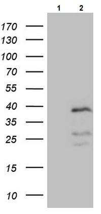 Western blot - Anti-PISD antibody [OTI4G5] (ab236405)