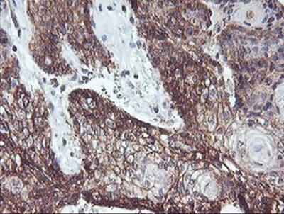 Immunohistochemistry (Formalin/PFA-fixed paraffin-embedded sections) - Anti-RFXANK antibody [OTI3E7] (ab236408)