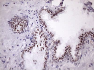 Immunohistochemistry (Formalin/PFA-fixed paraffin-embedded sections) - Anti-SFRS9/SRSF9 antibody [OTI5G7] (ab236414)