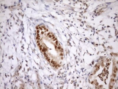 Immunohistochemistry (Formalin/PFA-fixed paraffin-embedded sections) - Anti-GCIP interacting protein p29 antibody [OTI6A5] (ab236417)