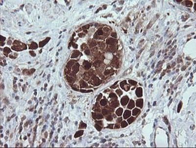 Immunohistochemistry (Formalin/PFA-fixed paraffin-embedded sections) - Anti-TRIM44 antibody [OTI1E10] (ab236422)