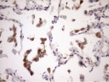 Immunohistochemistry (Formalin/PFA-fixed paraffin-embedded sections) - Anti-ZNF449 antibody [OTI4C6] (ab236427)