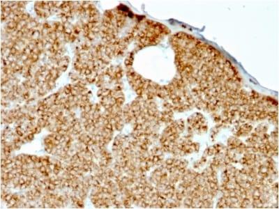 Immunohistochemistry (Formalin/PFA-fixed paraffin-embedded sections) - Anti-Parathyroid Hormone antibody [rPTH/911] - BSA and Azide free (ab236432)