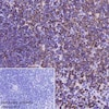 Immunohistochemistry (Formalin/PFA-fixed paraffin-embedded sections) - Anti-CD20 antibody [SP32] - BSA and Azide free (ab236434)
