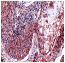 Immunohistochemistry (Formalin/PFA-fixed paraffin-embedded sections) - Anti-CD44 antibody [SP37] - BSA and Azide free (ab236436)