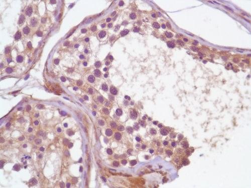 Immunohistochemistry (Formalin/PFA-fixed paraffin-embedded sections) - Anti-PI 3 Kinase p85 alpha antibody [SP62] - BSA and Azide free (ab236440)