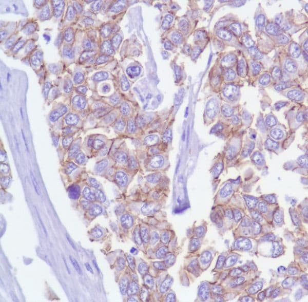 Immunohistochemistry (Formalin/PFA-fixed paraffin-embedded sections) - Anti-delta 1 Catenin/CAS antibody [SP63] - BSA and Azide free (ab236441)
