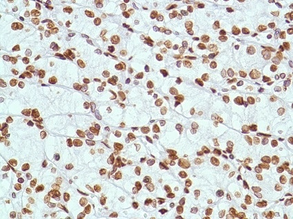Immunohistochemistry (Formalin/PFA-fixed paraffin-embedded sections) - Anti-ERCC1 antibody [SP68] - BSA and Azide free (ab236442)