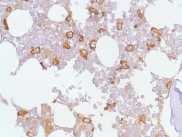 Immunohistochemistry (Formalin/PFA-fixed paraffin-embedded sections) - Anti-CD163 antibody [SP96] - BSA and Azide free (ab236444)