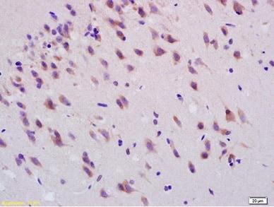 Immunohistochemistry (Formalin/PFA-fixed paraffin-embedded sections) - Anti-Smoothened antibody (ab236465)