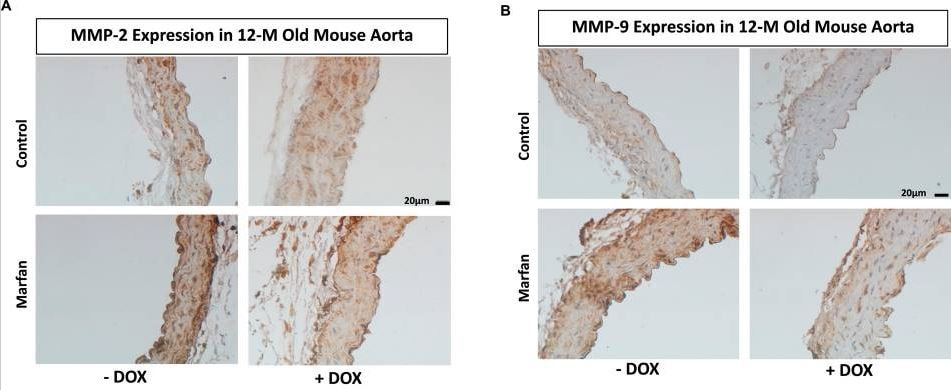 Effect of doxycycline (DOX) treatment on the expression of MMP-2 and MMP-9