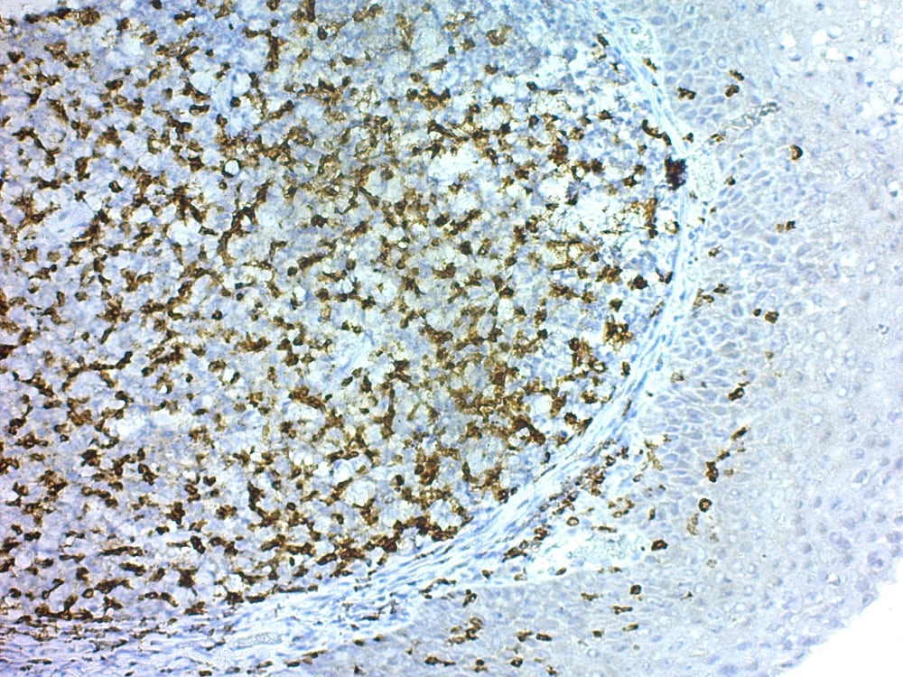 Immunohistochemistry (Formalin/PFA-fixed paraffin-embedded sections) - Rabbit specific HRP/DAB Detection IHC Detection Kit - Micro-polymer (ab236469)