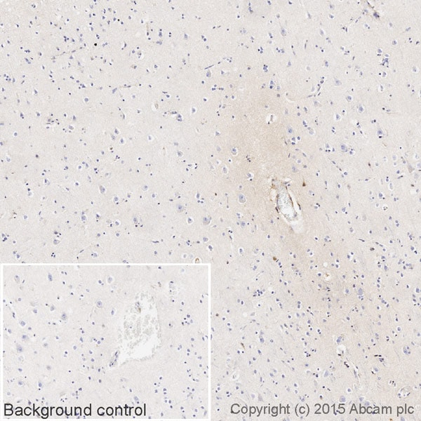 Immunohistochemistry (Formalin/PFA-fixed paraffin-embedded sections) - Rabbit monoclonal [EPR4419] Anti-Human IgG3 hinge heavy chain (Biotin) (ab236475)