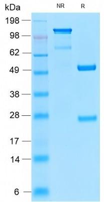 SDS-PAGE - Anti-Insulin Receptor alpha antibody [INSR/2277R] (ab236493)