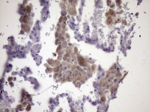 Immunohistochemistry (Formalin/PFA-fixed paraffin-embedded sections) - Anti-CIP2A antibody [OTI9E6] (ab236506)