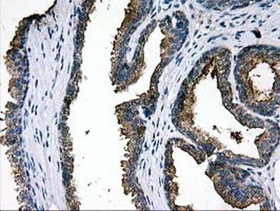 Immunohistochemistry (Formalin/PFA-fixed paraffin-embedded sections) - Anti-LGALS3BP antibody [OTI3D6] (ab236509)