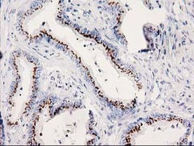 Immunohistochemistry (Formalin/PFA-fixed paraffin-embedded sections) - Anti-SOCS3 antibody [OTI3D3] (ab236519)