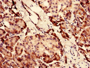 Immunohistochemistry (Formalin/PFA-fixed paraffin-embedded sections) - Anti-SI-CLP antibody (ab236578)
