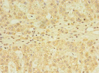 Immunohistochemistry (Formalin/PFA-fixed paraffin-embedded sections) - Anti-YKT6 antibody (ab236583)