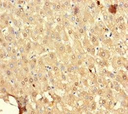 Immunohistochemistry (Formalin/PFA-fixed paraffin-embedded sections) - Anti-SRP19 antibody (ab236585)