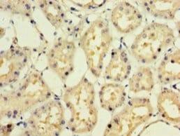 Immunohistochemistry (Formalin/PFA-fixed paraffin-embedded sections) - Anti-Interferon alpha10 antibody (ab236586)