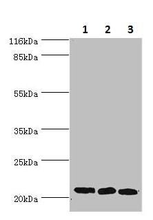 Western blot - Anti-SSSCA1 antibody (ab236587)