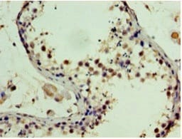 Immunohistochemistry (Formalin/PFA-fixed paraffin-embedded sections) - Anti-SSSCA1 antibody (ab236587)