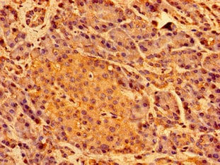 Immunohistochemistry (Formalin/PFA-fixed paraffin-embedded sections) - Anti-SHE antibody (ab236588)