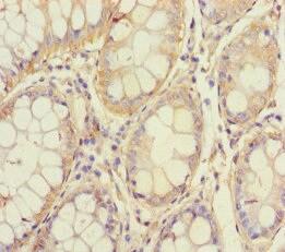 Immunohistochemistry (Formalin/PFA-fixed paraffin-embedded sections) - Anti-MST3 antibody (ab236589)