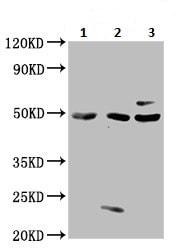 Western blot - Anti-MST3 antibody (ab236589)