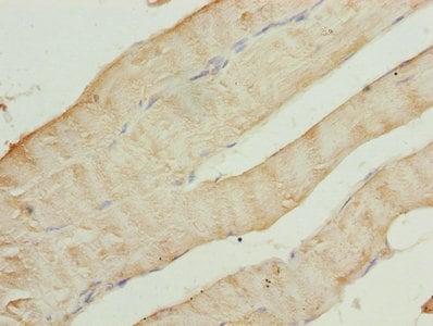 Immunohistochemistry (Formalin/PFA-fixed paraffin-embedded sections) - Anti-CAP2 antibody (ab236590)