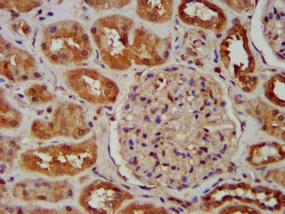 Immunohistochemistry (Formalin/PFA-fixed paraffin-embedded sections) - Anti-SNX12 antibody (ab236600)