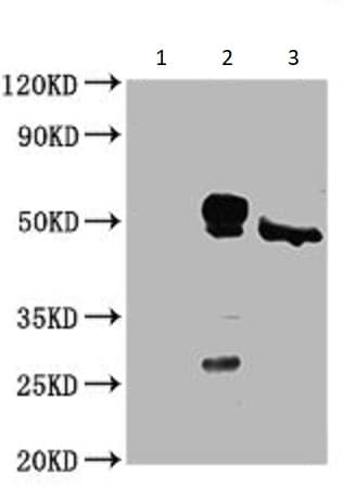 Immunoprecipitation - Anti-Casein Kinase 1 delta/CSNK1D antibody (ab236601)