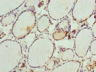 Immunohistochemistry (Formalin/PFA-fixed paraffin-embedded sections) - Anti-DHRS3 antibody (ab236603)