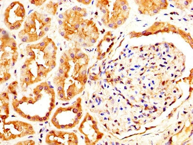 Immunohistochemistry (Formalin/PFA-fixed paraffin-embedded sections) - Anti-CLEC4E/MINCLE antibody (ab236605)