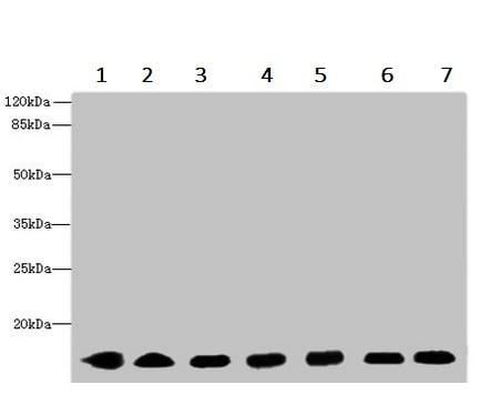 Western blot - Anti-CYB5B antibody (ab236612)