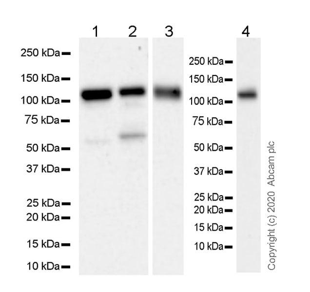 Western blot - Anti-USP16 antibody [EPR20914-47] (ab236628)