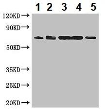Western blot - Anti-ENTPD7 antibody (ab236644)